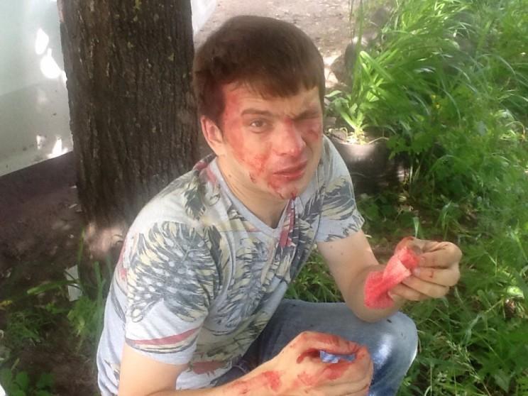 Александр Брагин после нападения на него утром 14 июня 2016 года